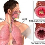 natural herbal asthma remedies